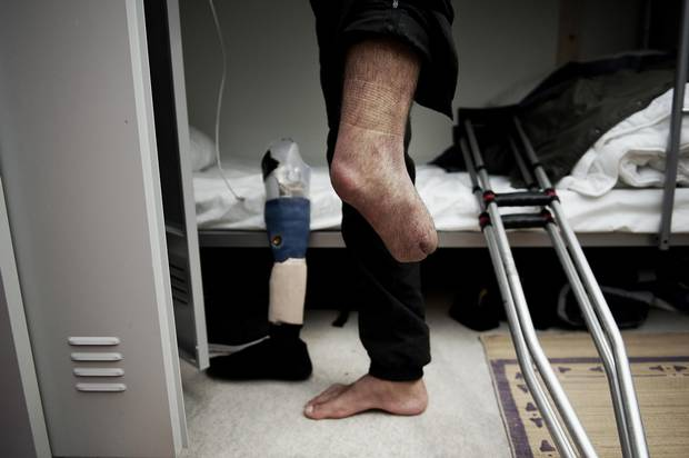 Osama Omran's left leg had to be amputated after he was injured in a government bombing.