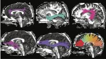 Researchers used diffusion tensor imaging, a form of magnetic resonance imaging, to compare the brains of people with different versions of a gene that plays a role in memory and learning. They found people with one version of the gene had subtle, age-related weaknesses in the white matter connections that form memory circuitry in the brain.