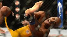 Anderson Silva reacts after breaking his leg on a kick to Chris Weidman (not pictured) during their UFC middleweight championship bout at the MGM Grand Garden Arena. (Jayne Kamin-Oncea/USA Today Sports)