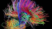 A brand new look: This image of neural pathways as captured by researchers bankrolled by the U.S. National Institutes of Health is part of an attempt to compile and comprehend an unparalleled amount of data about the human brain. (Human Connectome Project)