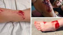 Photos of Jim Popp's wife after she was bitten by a shark in South Carolina posted by her husband, Montreal general manager Jim Popp, on his Twitter account (Jim Popp Twitter account)