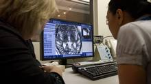 Medical staff monitor brain scans at a Toronto hospital in a photo from Dec. 18, 2012. (Tim Fraser For The Globe and Mail)