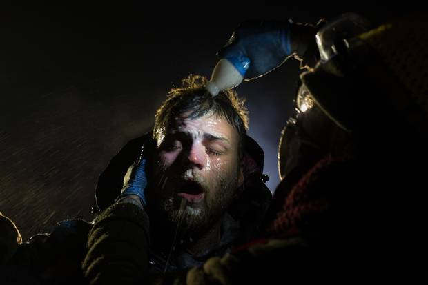 During the protests, a man is treated after being pepper sprayed by police. White people have joined the camps in large numbers, often standing in front of indigenous protestors to shield them with their bodies.