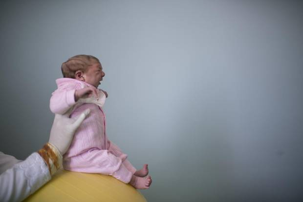 In 2015, the rates of birth defects appeared to be manyfold higher in northeastern Brazil than the rest of the country, and a much greater proportion of the affected babies had more severe clinical presentations such as microcephaly. Sophia, seen as a two-week-old during a physical therapy session in the northeastern city of Campina Grande on Feb. 12, 2016, was born with microcephaly.