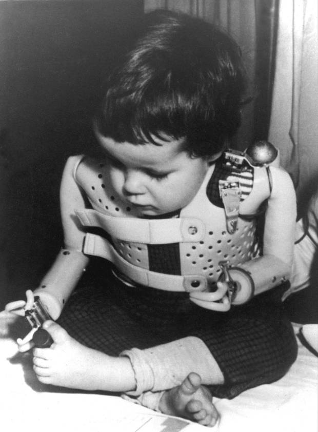 In a 1965 file photo provided by the U.S. Department of Health, a three-year-old girl, born without arms to a German mother who took thalidomide, uses power-driven artificial arms.