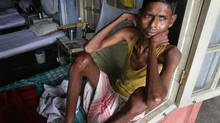 Tuberculosis patient Moniram Das, 40, sits on his bed by the window at the Government TB hospital in Gauhati, India, on World Tuberculosis Day, Saturday, March 24, 2007. (Anupam Nath/AP)