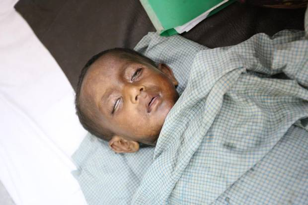 Thirteen-month-old Hares was sleeping when the military lit his family's straw house on fire in Myanmar. He received extensive burns.