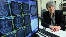 Dr. Sandra Black has a long legacy of pioneering stroke research.  (Supplied)