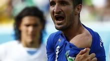 Italy's Giorgio Chiellini shows his shoulder, claiming he was bitten by Uruguay's Luis Suarez (TONY GENTILE/REUTERS)