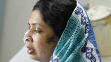 Rumana Monzur, was taking a break from her studies and had returned to Dhaka, Bangladesh, to visit family when she was attacked June 5 by her husband. This photo taken on Wednesday June 22, 2011 at LabAid hospital in Dhaka. (S. K. Enamul Haq)