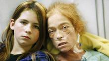 Bonnie Cameron, photographed with daughter Alica Mehlenbacher, 12, last week at Toronto General Hospital, has incurable PAH. (Charla Jones/The Globe and Mail)