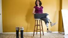 Cyndi Desjardins lost the lower portions of all four limbs to flesh-eating disease. (Chris Young/THE CANADIAN PRESS)