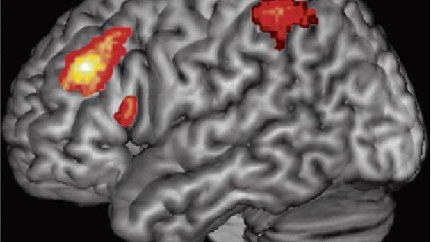 The bilingual brain: Human evolution and second language ...