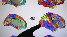 Dr. Randy McIntosh , Senior Scientist and Associate Director, Rotman Research Institute and professer at U of T points to scans of brains that are displayed on a computer screen. The different colours represent different cognitive functions of the brain. (FRED LUM/ GLOBE AND MAIL/FRED LUM/ GLOBE AND MAIL)
