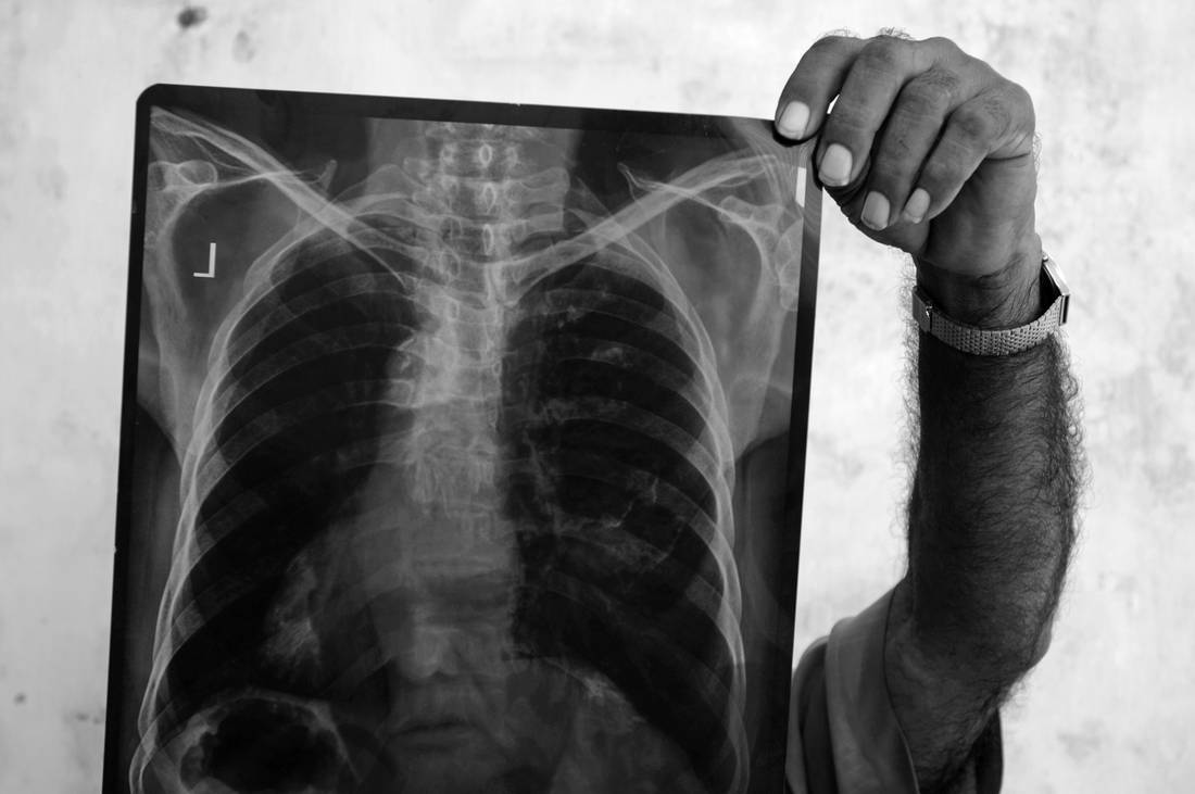 Raghunath Manwar examines an x-ray of one of several workers who has been diagnosed with asbestosis in Ahmedabad, India. Raghunath is the secretary of an NGO called the Occupational Health and Safety Association and he is located in Ahmedabad in the western Indian state of Gujarat. He is working with the employees affected by asbestos from the Ahmedabad Electric Company (AEC) and the former Digvijay Cement Factory.